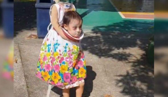 La Terrorifica Nina Sin Cabeza Que Se Gana El Premio Al Mejor - Disfraces-sin-cabeza