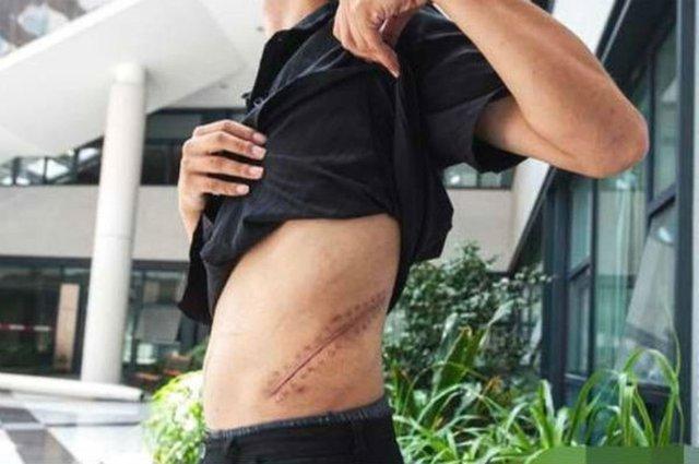 Vendió su riñón por un iPhone; ahora está postrado en cama