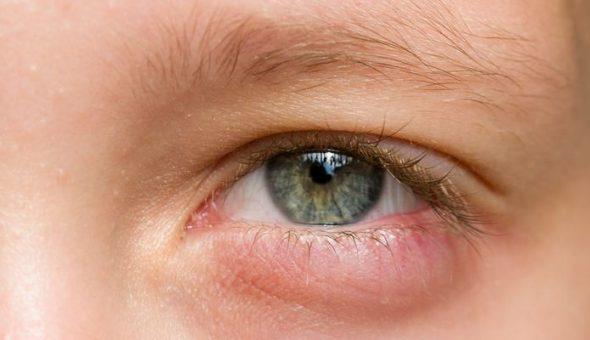Mujer se aplica crema para la disfunción eréctil en el ojo