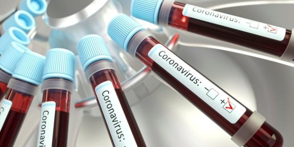 coronavirus fase 3